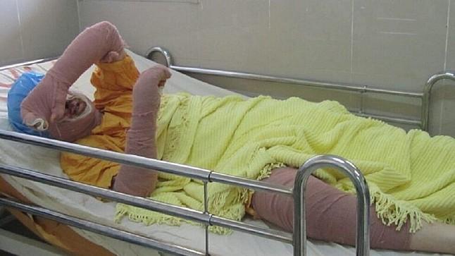 وفاة شابة  بعد إضرامها النار بنفسها أمام محكمة