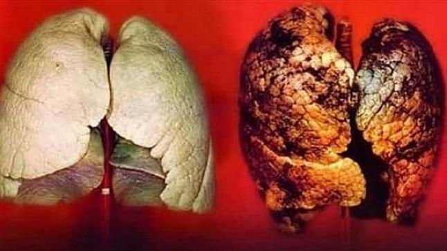 دراسة جديدة تكشف العلاقة بين اللبن وسرطان الرئة